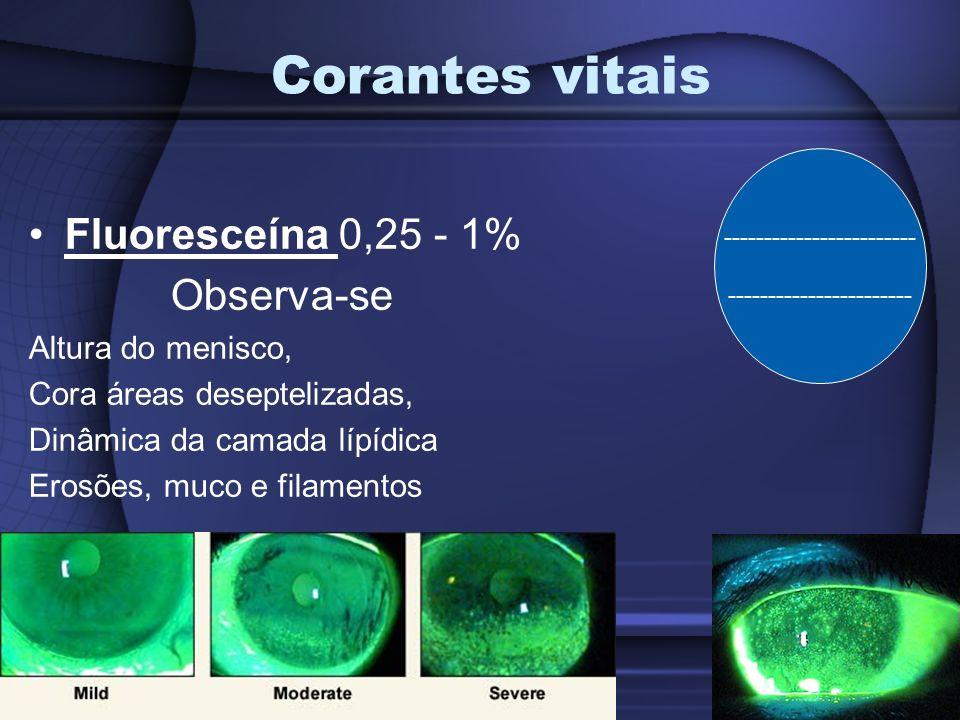Corantes vitais Rosa Bengala 1% Cora cels em sofrimento, (cels saudáveis não recobertas por pela camada protetora de muco) Escala de Bijsterveld ( maior ou igual a 3 ) OBS: opção ao rosa Bengala é a Lissamina verde 1%