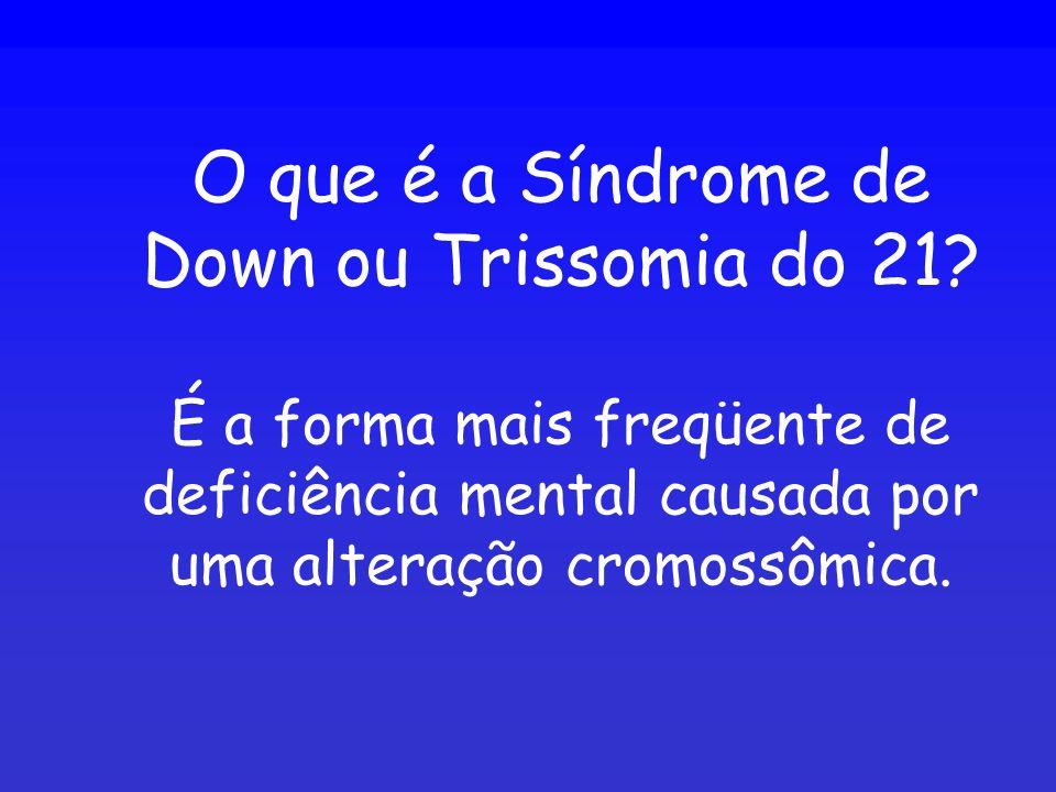 O que é a Síndrome de Down ou Trissomia do 21? É a forma mais freqüente de deficiência mental causada por uma alteração cromossômica.