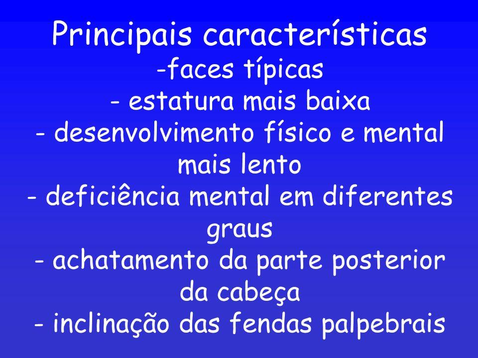 Principais características -faces típicas - estatura mais baixa - desenvolvimento físico e mental mais lento - deficiência mental em diferentes graus