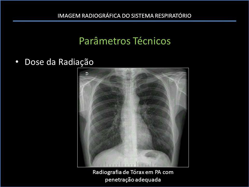 IMAGEM RADIOGRÁFICA DO SISTEMA RESPIRATÓRIO Parâmetros Técnicos Dose da Radiação Radiografia de Tórax em PA com penetração adequada