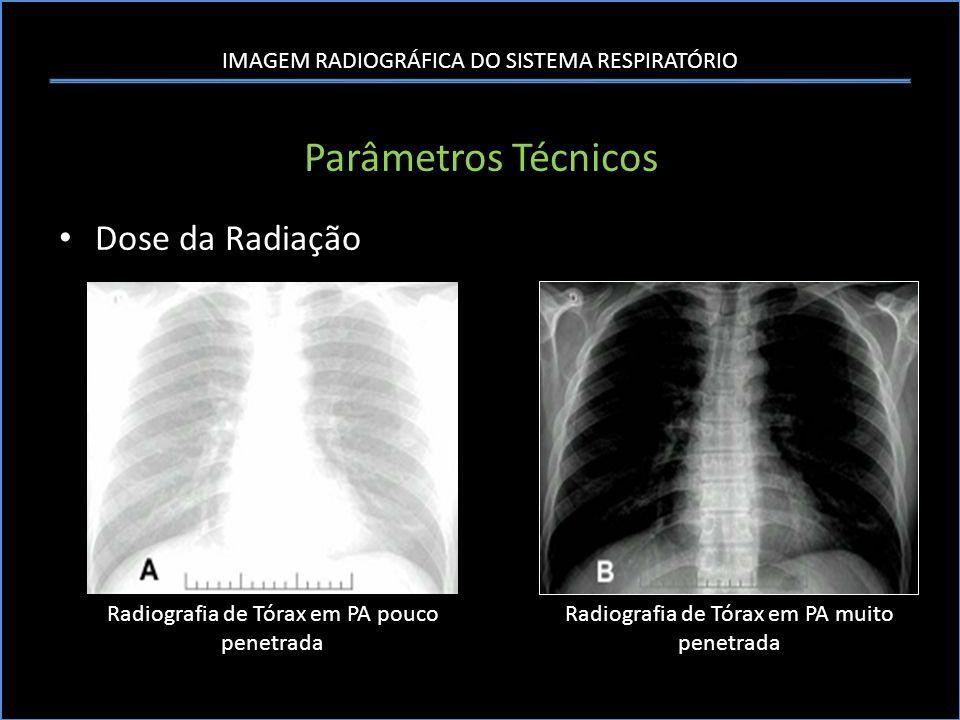 IMAGEM RADIOGRÁFICA DO SISTEMA RESPIRATÓRIO Parâmetros Técnicos Dose da Radiação Radiografia de Tórax em PA pouco penetrada Radiografia de Tórax em PA