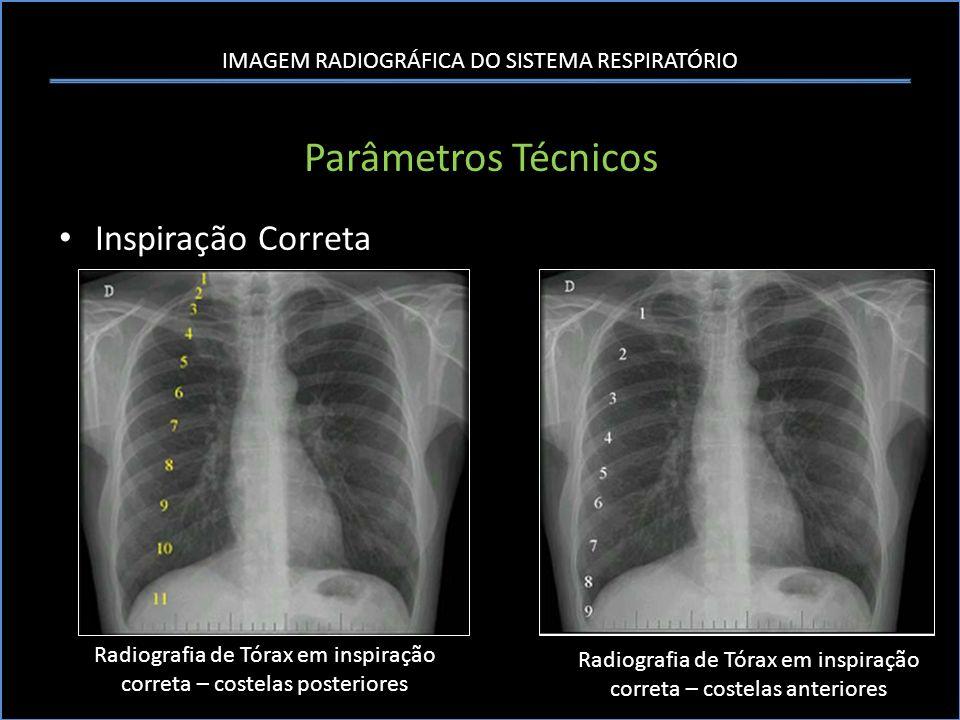 IMAGEM RADIOGRÁFICA DO SISTEMA RESPIRATÓRIO Parâmetros Técnicos Inspiração Correta Radiografia de Tórax em inspiração correta – costelas posteriores R