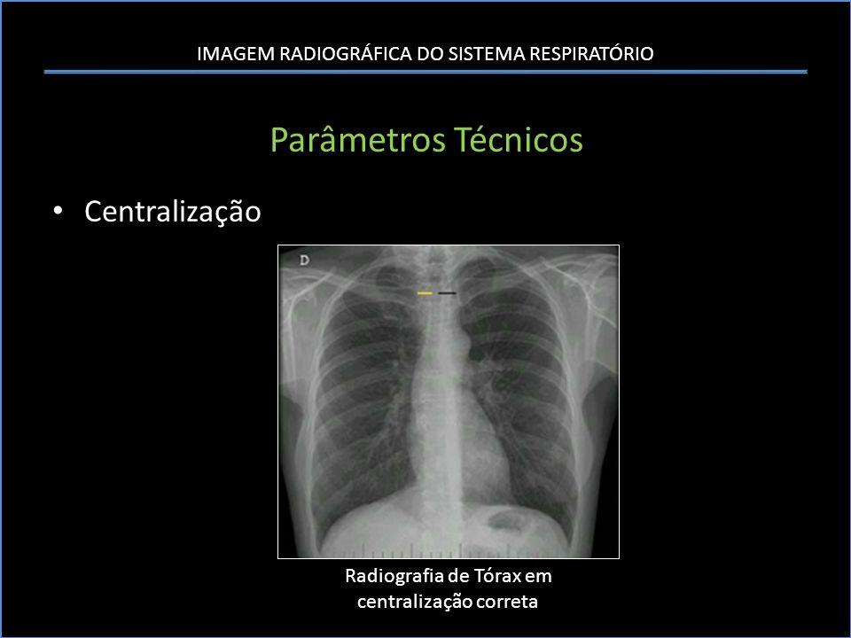 IMAGEM RADIOGRÁFICA DO SISTEMA RESPIRATÓRIO Parâmetros Técnicos Centralização Radiografia de Tórax em centralização correta