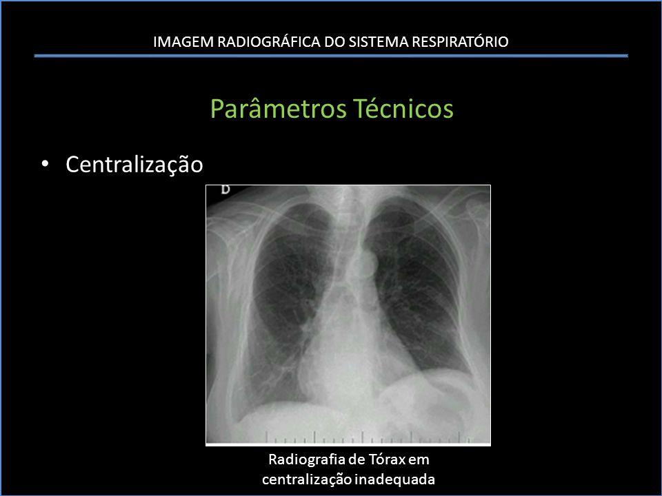 IMAGEM RADIOGRÁFICA DO SISTEMA RESPIRATÓRIO Parâmetros Técnicos Centralização Radiografia de Tórax em centralização inadequada