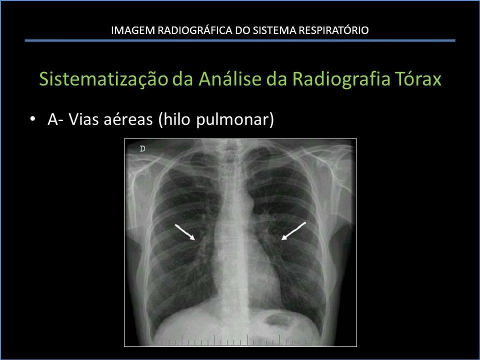 IMAGEM RADIOGRÁFICA DO SISTEMA RESPIRATÓRIO Sistematização da Análise da Radiografia Tórax A- Vias aéreas (hilo pulmonar)