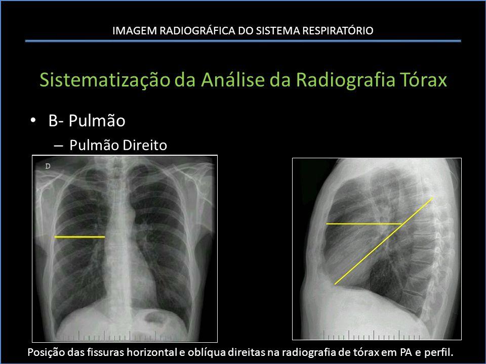 IMAGEM RADIOGRÁFICA DO SISTEMA RESPIRATÓRIO Sistematização da Análise da Radiografia Tórax B- Pulmão – Pulmão Direito Posição das fissuras horizontal