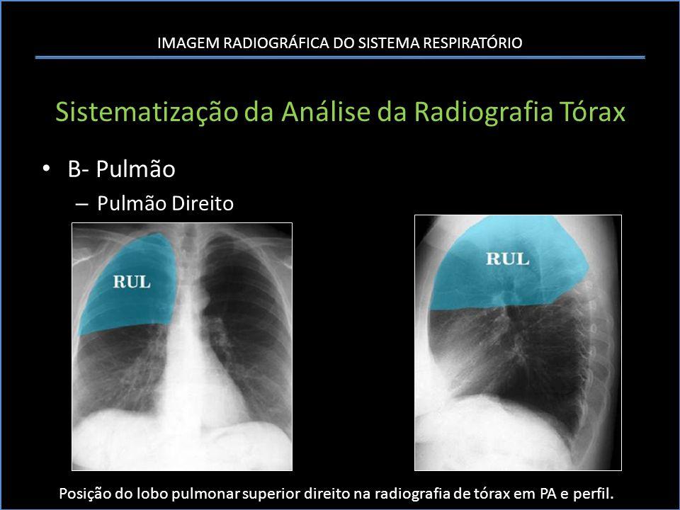 IMAGEM RADIOGRÁFICA DO SISTEMA RESPIRATÓRIO Sistematização da Análise da Radiografia Tórax B- Pulmão – Pulmão Direito Posição do lobo pulmonar superio