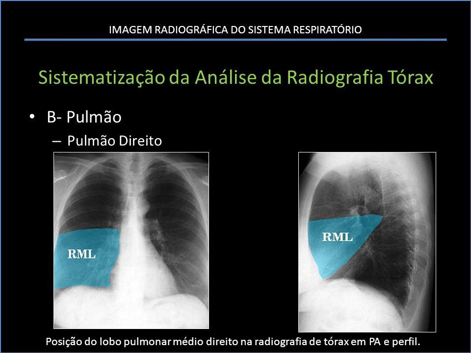 IMAGEM RADIOGRÁFICA DO SISTEMA RESPIRATÓRIO Sistematização da Análise da Radiografia Tórax B- Pulmão – Pulmão Direito Posição do lobo pulmonar médio d
