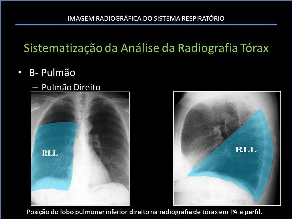IMAGEM RADIOGRÁFICA DO SISTEMA RESPIRATÓRIO Sistematização da Análise da Radiografia Tórax B- Pulmão – Pulmão Direito Posição do lobo pulmonar inferio
