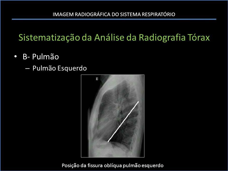 IMAGEM RADIOGRÁFICA DO SISTEMA RESPIRATÓRIO Sistematização da Análise da Radiografia Tórax B- Pulmão – Pulmão Esquerdo Posição da fissura oblíqua pulm