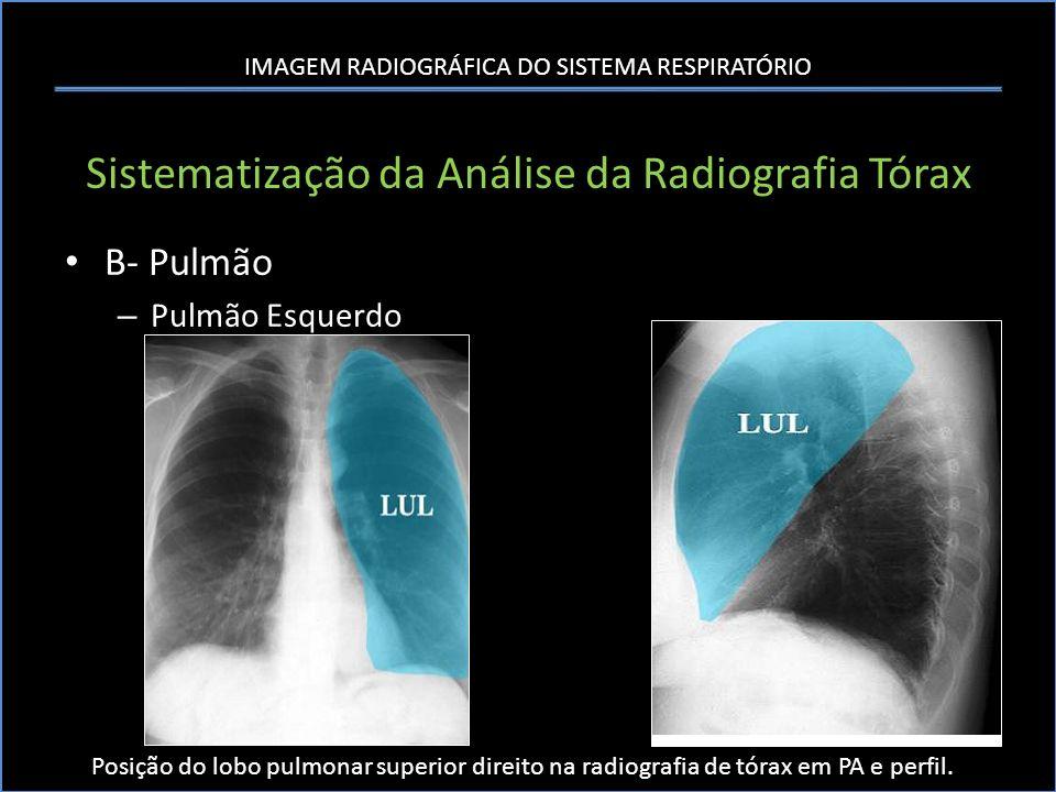 IMAGEM RADIOGRÁFICA DO SISTEMA RESPIRATÓRIO Sistematização da Análise da Radiografia Tórax B- Pulmão – Pulmão Esquerdo Posição do lobo pulmonar superi