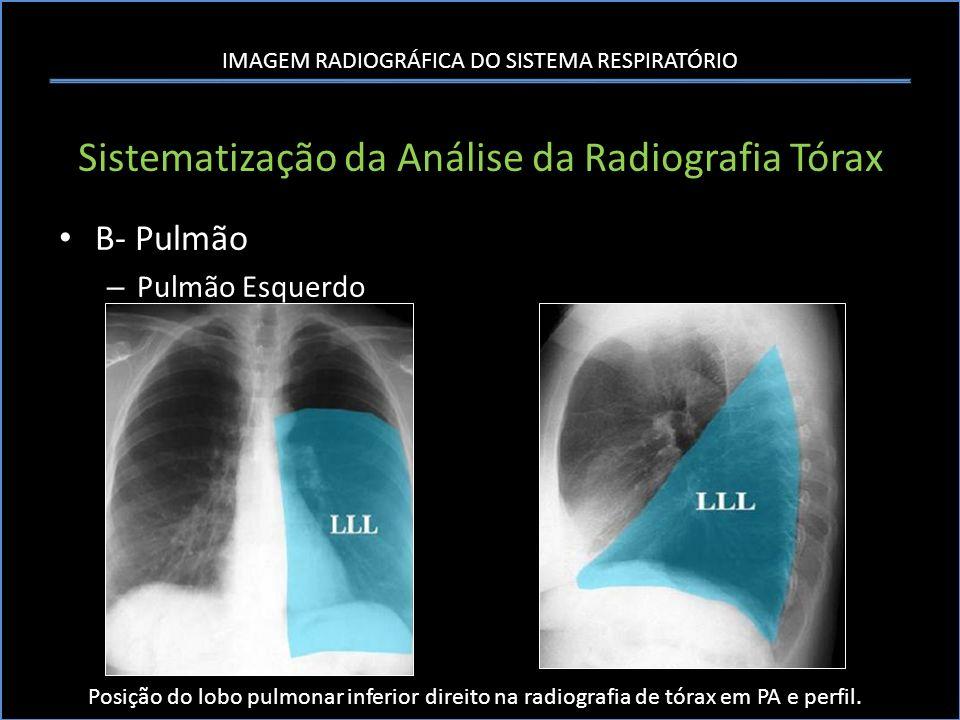 IMAGEM RADIOGRÁFICA DO SISTEMA RESPIRATÓRIO Sistematização da Análise da Radiografia Tórax B- Pulmão – Pulmão Esquerdo Posição do lobo pulmonar inferi