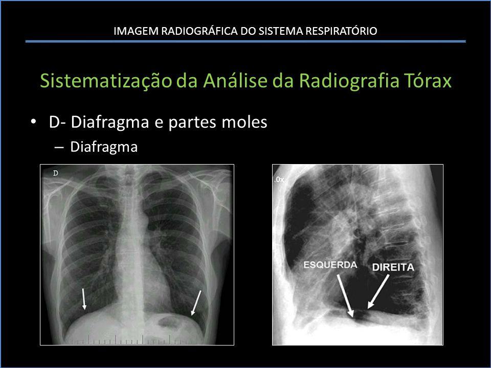 IMAGEM RADIOGRÁFICA DO SISTEMA RESPIRATÓRIO Sistematização da Análise da Radiografia Tórax D- Diafragma e partes moles – Diafragma