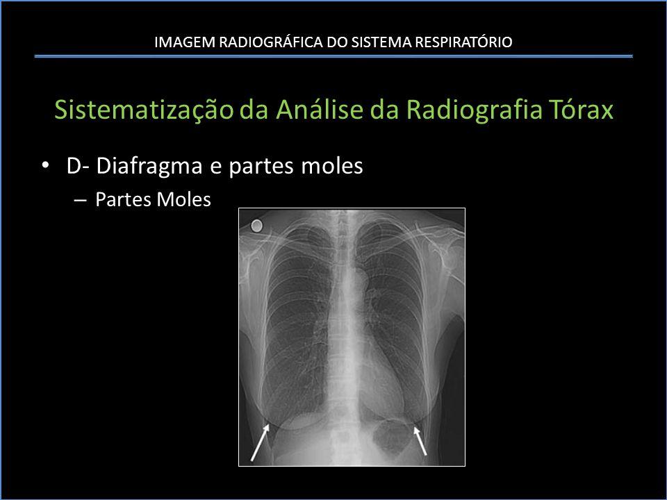 IMAGEM RADIOGRÁFICA DO SISTEMA RESPIRATÓRIO Sistematização da Análise da Radiografia Tórax D- Diafragma e partes moles – Partes Moles