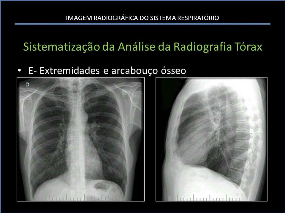 IMAGEM RADIOGRÁFICA DO SISTEMA RESPIRATÓRIO Sistematização da Análise da Radiografia Tórax E- Extremidades e arcabouço ósseo