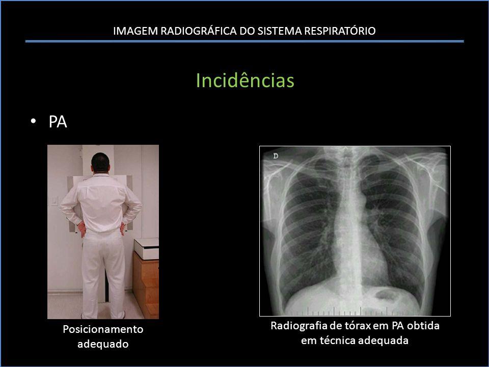 IMAGEM RADIOGRÁFICA DO SISTEMA RESPIRATÓRIO Sistematização da Análise da Radiografia Tórax B- Pulmão – Pulmão Direito Posição das fissuras horizontal e oblíqua direitas na radiografia de tórax em PA e perfil.