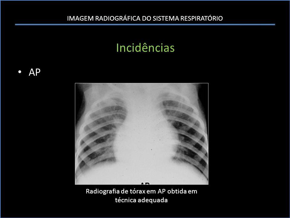 IMAGEM RADIOGRÁFICA DO SISTEMA RESPIRATÓRIO Sistematização da Análise da Radiografia Tórax B- Pulmão – Pulmão Direito Posição do lobo pulmonar médio direito na radiografia de tórax em PA e perfil.