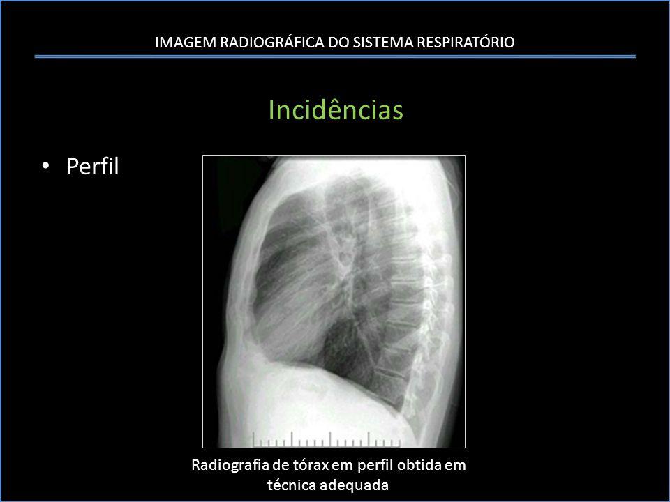 IMAGEM RADIOGRÁFICA DO SISTEMA RESPIRATÓRIO Incidências Outras incidências utIlizadas – Ápico-lordóticas avaliação dos ápices pulmonares, lobo médio e língula – Decúbito lateral com raios horizontais Diferenciação entre derrame e espessamento pleural.