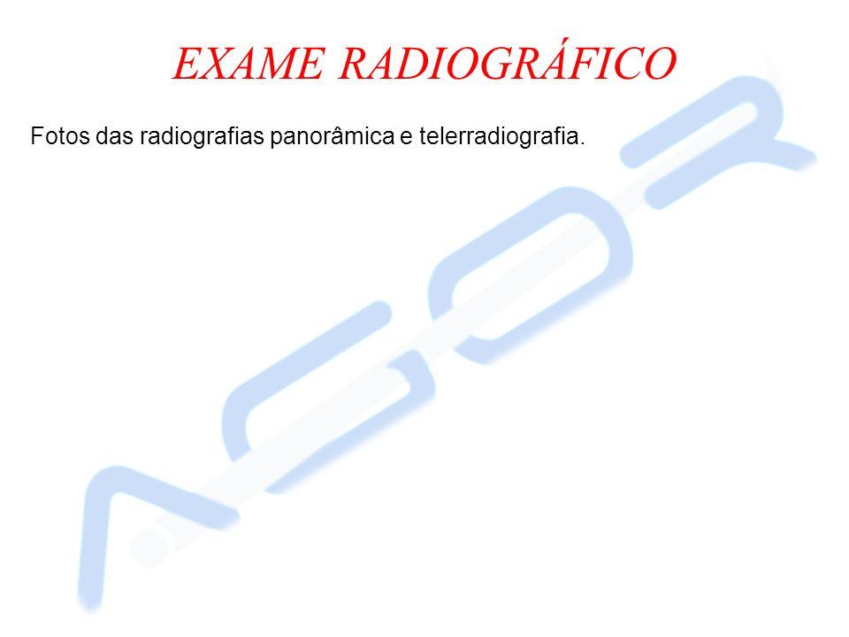 EXAME RADIOGRÁFICO Fotos das radiografias panorâmica e telerradiografia.