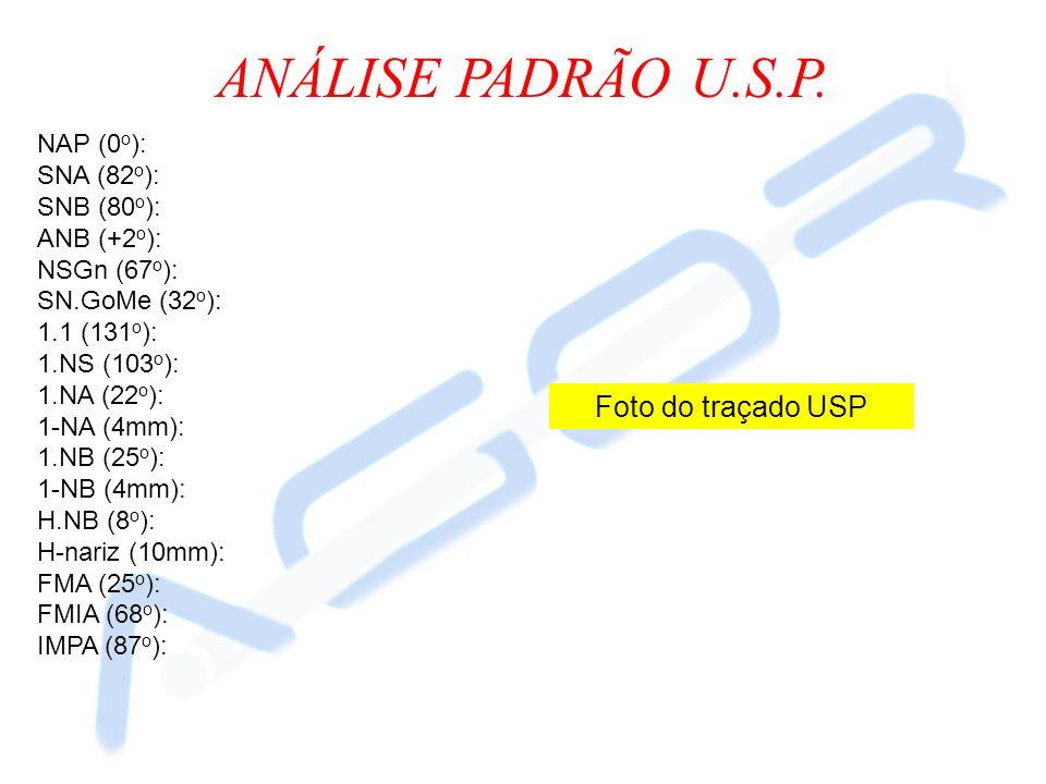 ANÁLISE PADRÃO U.S.P. NAP (0 o ): SNA (82 o ): SNB (80 o ): ANB (+2 o ): NSGn (67 o ): SN.GoMe (32 o ): 1.1 (131 o ): 1.NS (103 o ): 1.NA (22 o ): 1-N
