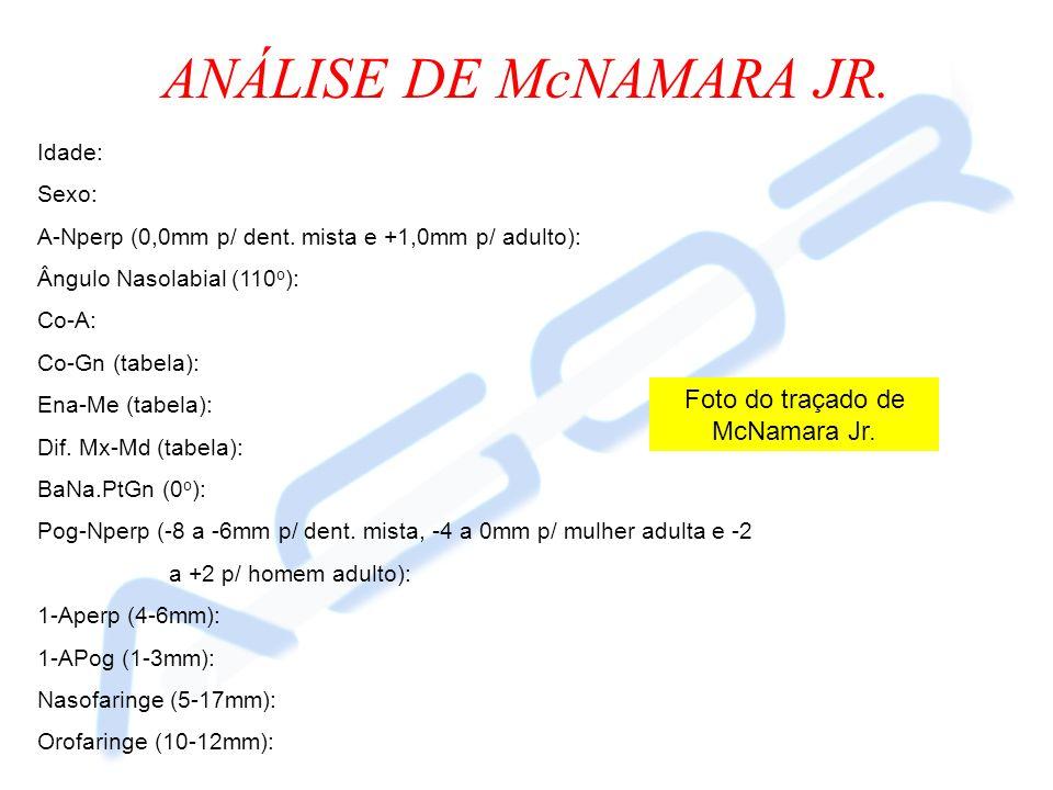ANÁLISE DE McNAMARA JR. Idade: Sexo: A-Nperp (0,0mm p/ dent. mista e +1,0mm p/ adulto): Ângulo Nasolabial (110 o ): Co-A: Co-Gn (tabela): Ena-Me (tabe