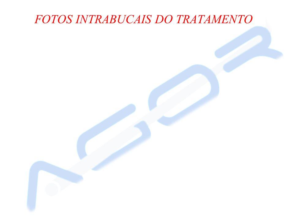 FOTOS INTRABUCAIS DO TRATAMENTO