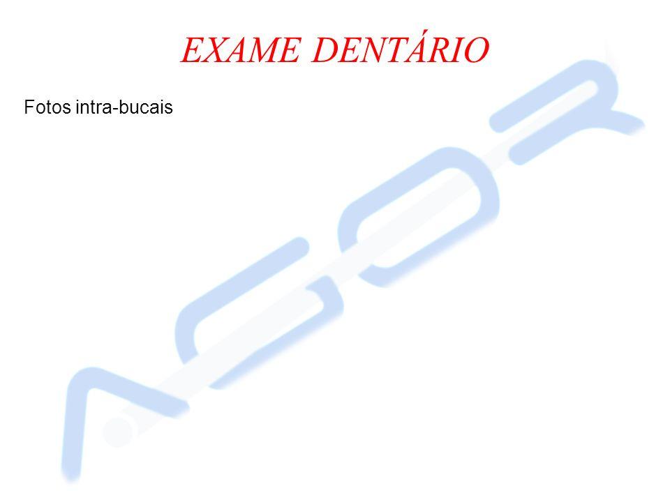 EXAME DENTÁRIO Fotos intra-bucais