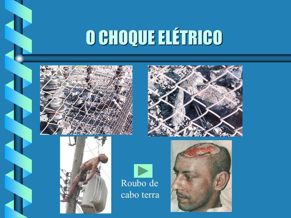 O CHOQUE ELÉTRICO O CHOQUE ELÉTRICO Definição: Passagem rápida e acidental da corrente elétrica pelo corpo humano, podendo causar incapacidade temporá