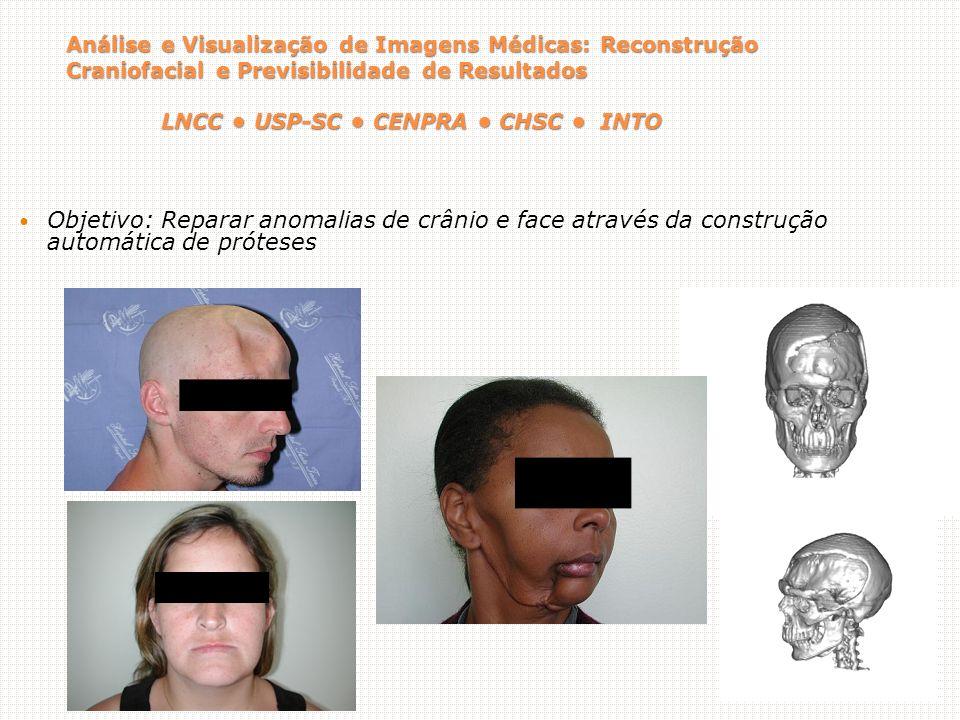 Análise e Visualização de Imagens Médicas: Reconstrução Craniofacial e Previsibilidade de Resultados LNCC USP-SC CENPRA CHSC INTO Objetivo: Reparar anomalias de crânio e face através da construção automática de próteses