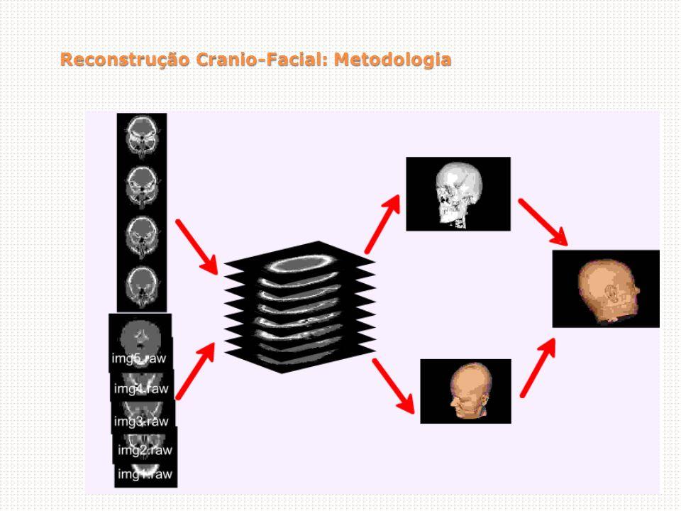 Reconstrução Cranio-Facial: Metodologia
