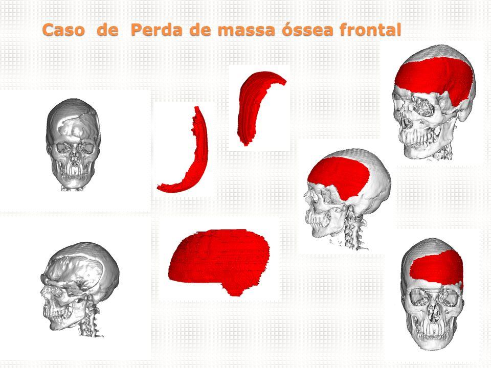 Caso de Perda de massa óssea frontal