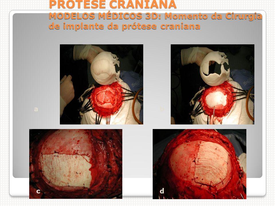 PRÓTESE CRANIANA MODELOS MÉDICOS 3D: Momento da Cirurgia de implante da prótese craniana ab cd