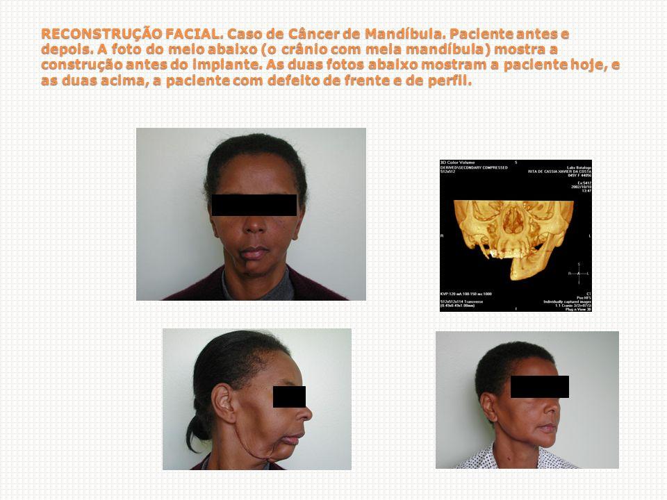 RECONSTRUÇÃO FACIAL.Caso de Câncer de Mandíbula. Paciente antes e depois.