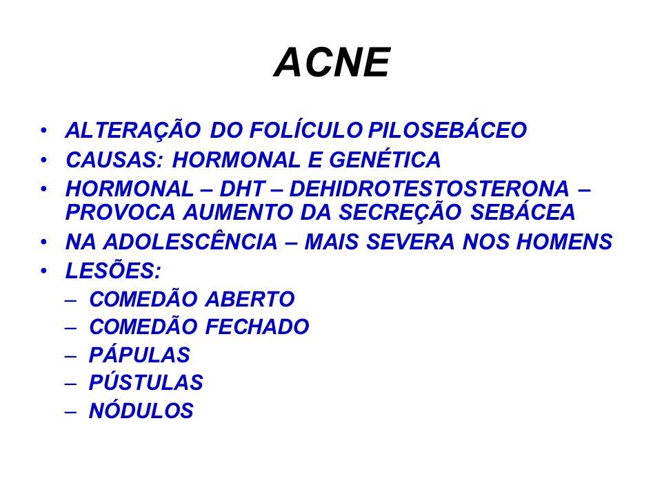 ACNE ALTERAÇÃO DO FOLÍCULO PILOSEBÁCEO CAUSAS: HORMONAL E GENÉTICA HORMONAL – DHT – DEHIDROTESTOSTERONA – PROVOCA AUMENTO DA SECREÇÃO SEBÁCEA NA ADOLESCÊNCIA – MAIS SEVERA NOS HOMENS LESÕES: –COMEDÃO ABERTO –COMEDÃO FECHADO –PÁPULAS –PÚSTULAS –NÓDULOS