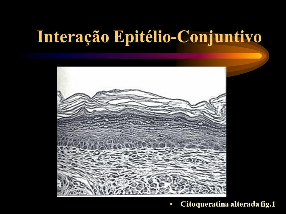 Interação Epitélio-Conjuntivo Componente elástico da interface conjuntiva
