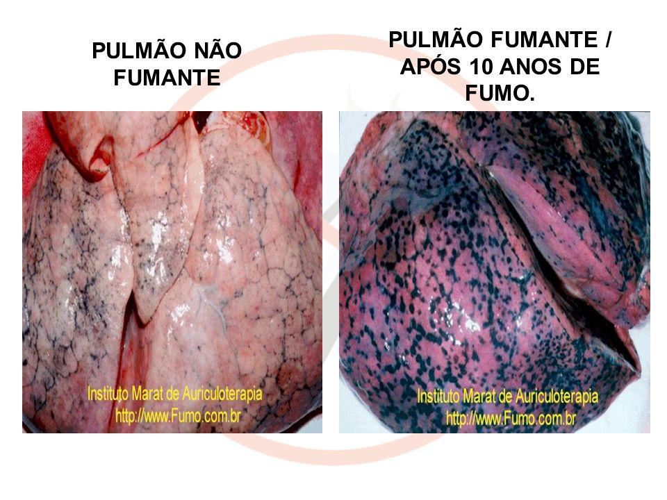 PULMÃO NÃO FUMANTE PULMÃO FUMANTE / APÓS 10 ANOS DE FUMO.