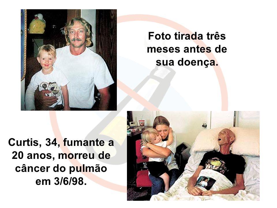 Curtis, 34, fumante a 20 anos, morreu de câncer do pulmão em 3/6/98. Foto tirada três meses antes de sua doença.