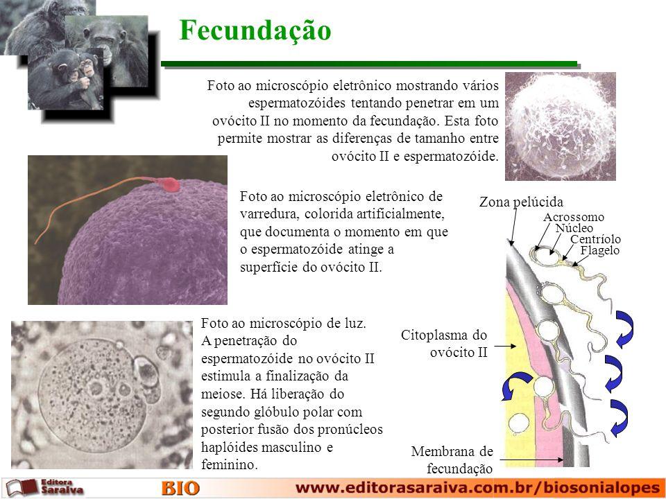 Camisinha Diafragma vaginal Dispositivo intra-uterino Geléia espermicida e diafragma Métodos anticoncepcionais reversíveis