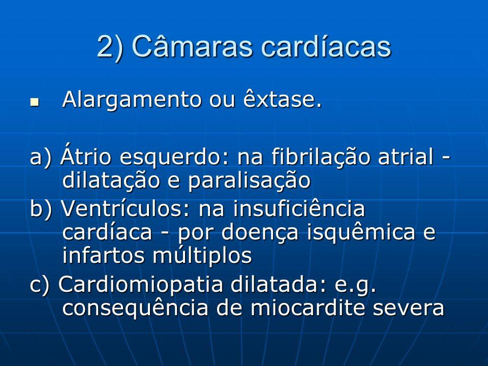 2) Câmaras cardíacas Alargamento ou êxtase. Alargamento ou êxtase. a) Átrio esquerdo: na fibrilação atrial - dilatação e paralisação b) Ventrículos: n