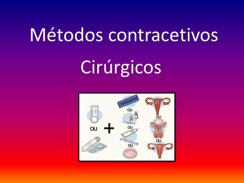 Métodos contracetivos Cirúrgicos