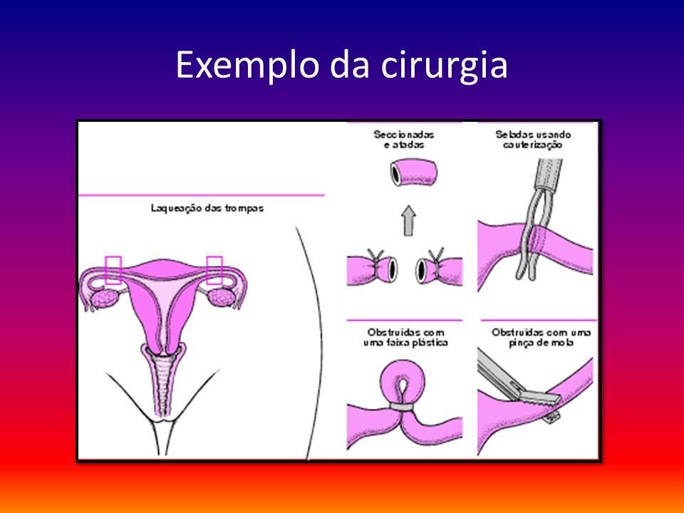 Exemplo da cirurgia