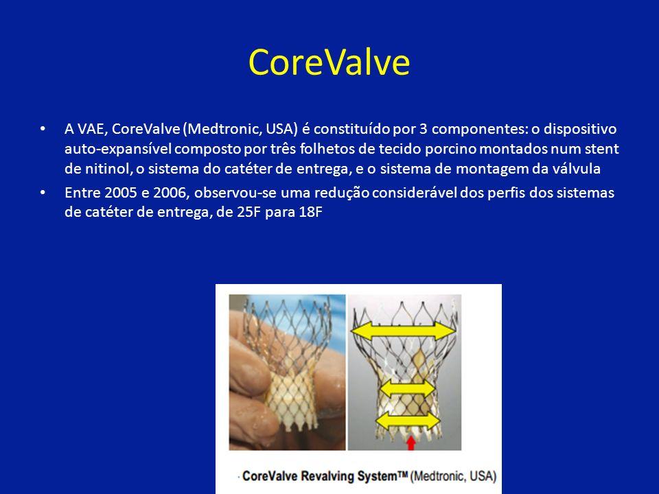 CoreValve A VAE, CoreValve (Medtronic, USA) é constituído por 3 componentes: o dispositivo auto-expansível composto por três folhetos de tecido porcino montados num stent de nitinol, o sistema do catéter de entrega, e o sistema de montagem da válvula Entre 2005 e 2006, observou-se uma redução considerável dos perfis dos sistemas de catéter de entrega, de 25F para 18F