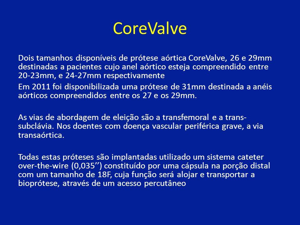 CoreValve Dois tamanhos disponíveis de prótese aórtica CoreValve, 26 e 29mm destinadas a pacientes cujo anel aórtico esteja compreendido entre 20-23mm, e 24-27mm respectivamente Em 2011 foi disponibilizada uma prótese de 31mm destinada a anéis aórticos compreendidos entre os 27 e os 29mm.