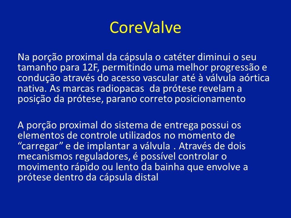 CoreValve Na porção proximal da cápsula o catéter diminui o seu tamanho para 12F, permitindo uma melhor progressão e condução através do acesso vascular até à válvula aórtica nativa.
