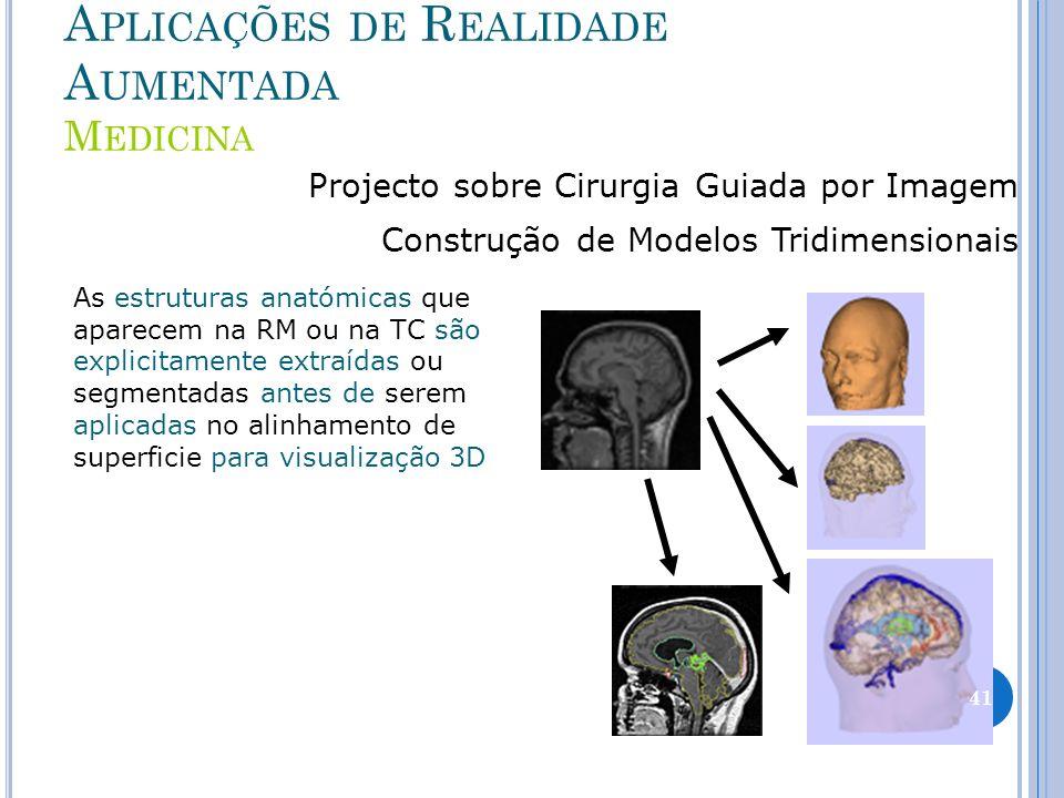 A PLICAÇÕES DE R EALIDADE A UMENTADA M EDICINA Projecto sobre Cirurgia Guiada por Imagem Construção de Modelos Tridimensionais As estruturas anatómica