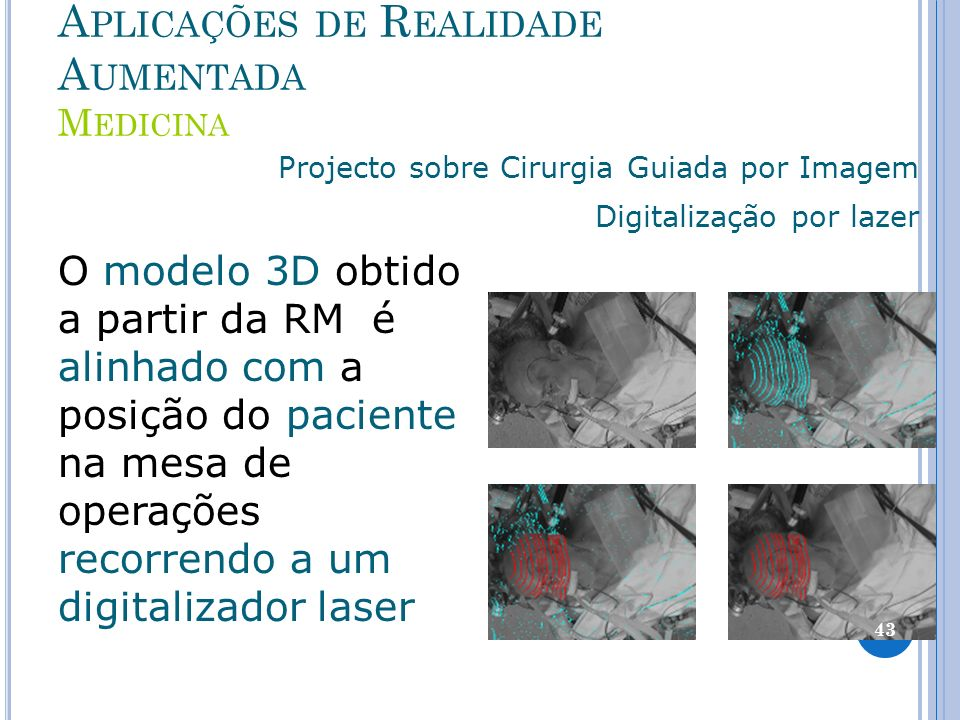 A PLICAÇÕES DE R EALIDADE A UMENTADA M EDICINA Projecto sobre Cirurgia Guiada por Imagem Digitalização por lazer O modelo 3D obtido a partir da RM é alinhado com a posição do paciente na mesa de operações recorrendo a um digitalizador laser 43