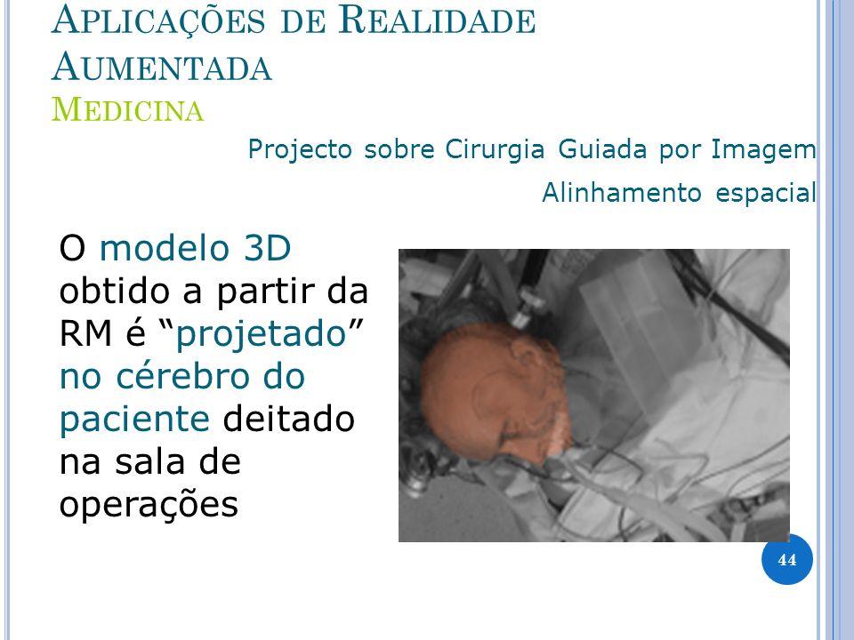 A PLICAÇÕES DE R EALIDADE A UMENTADA M EDICINA Projecto sobre Cirurgia Guiada por Imagem Alinhamento espacial O modelo 3D obtido a partir da RM é projetado no cérebro do paciente deitado na sala de operações 44