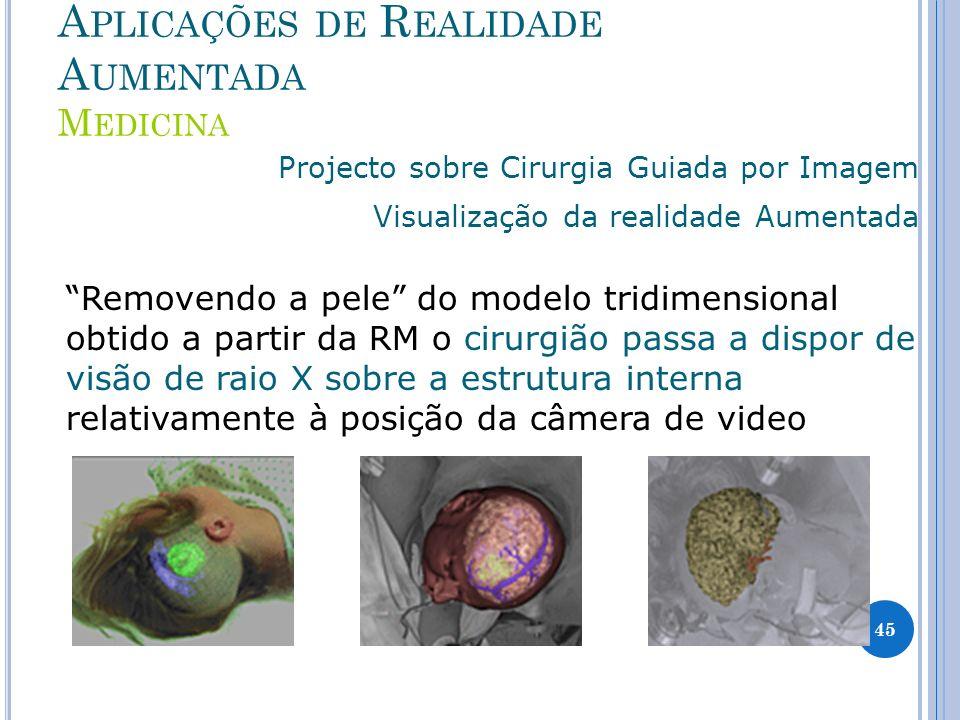 A PLICAÇÕES DE R EALIDADE A UMENTADA M EDICINA Projecto sobre Cirurgia Guiada por Imagem Visualização da realidade Aumentada Removendo a pele do model