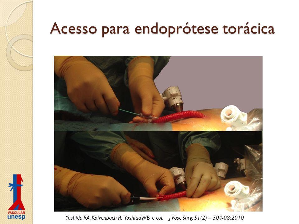 Acesso para endoprótese torácica Yoshida RA, Kolvenbach R, YoshidaWB e col. J Vasc Surg: 51(2) – 504-08: 2010