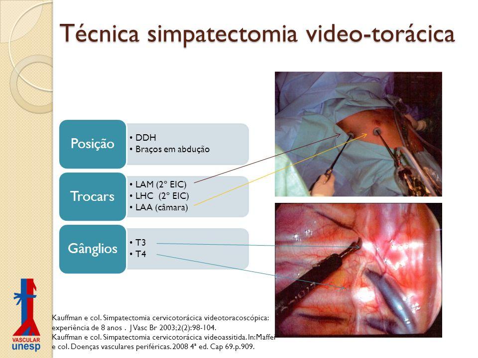 Técnica simpatectomia video-torácica DDH Braços em abdução Posição LAM (2º EIC) LHC (2º EIC) LAA (câmara) Trocars T3 T4 Gânglios Kauffman e col. Simpa